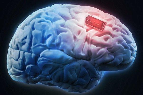تشخیص بیماری های مغز و اعصاب به کمک فناوری های نوین پزشکی