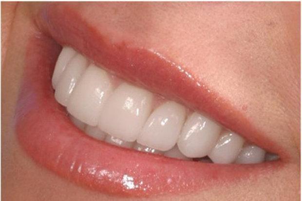 3 تا5دقیقه؛زمان استاندارد برای مسواک زدن، ضرورت استفاده ازنخ دندان