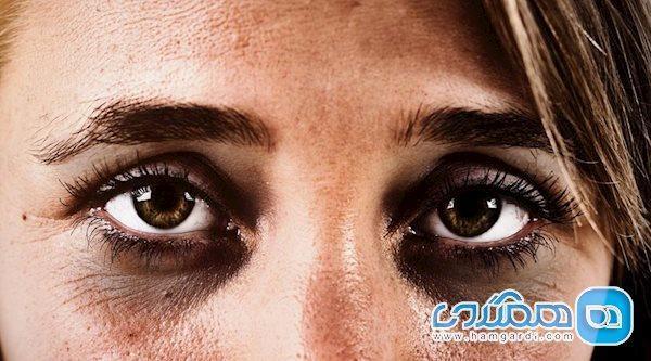 علت سیاهی زیر چشم چیست و چگونه می توان آن را رفع کرد؟